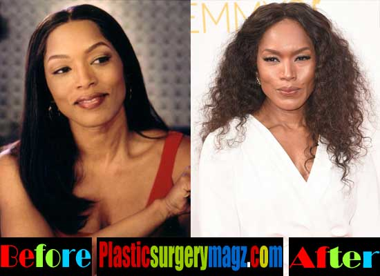 Angela Bassett Plastic Surgery Photos
