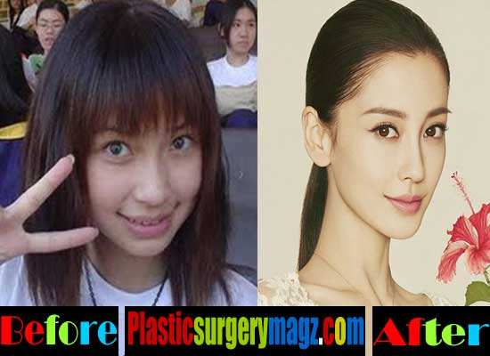 Angelababy Rhinoplasty Surgery Before and After