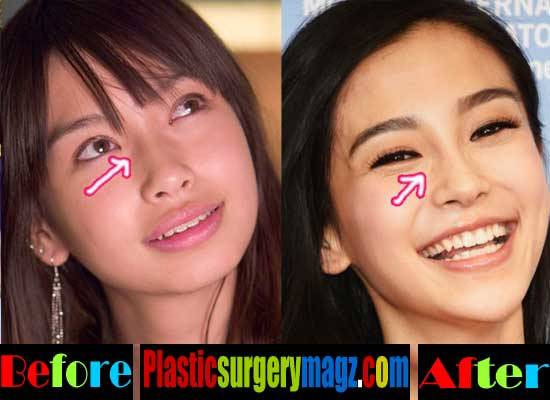 Angelababy Eyelid Surgery Surgery Before and After