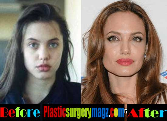 Angelina Jolie Rhinoplasty Surgery