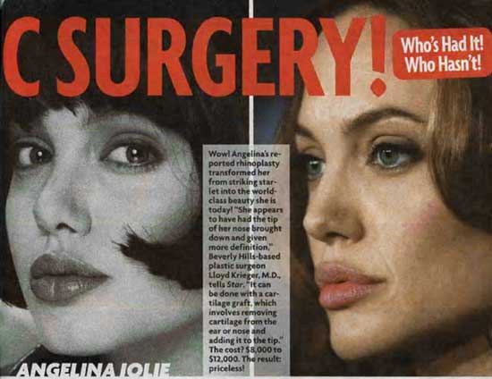 Angelina Jolie Before and After Plastic Surgery Photos
