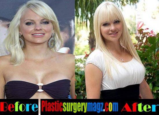 Anna Faris Plastic Surgery Breast