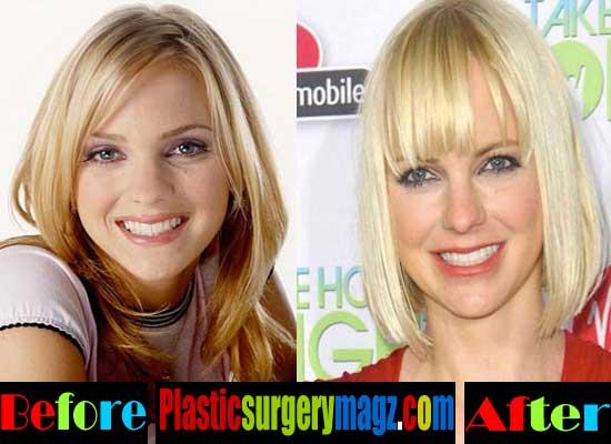 Anna Faris Plastic Surgery Face
