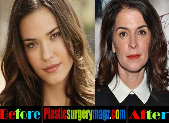 Annabella Sciorra Rhinoplasty Surgery Before and After
