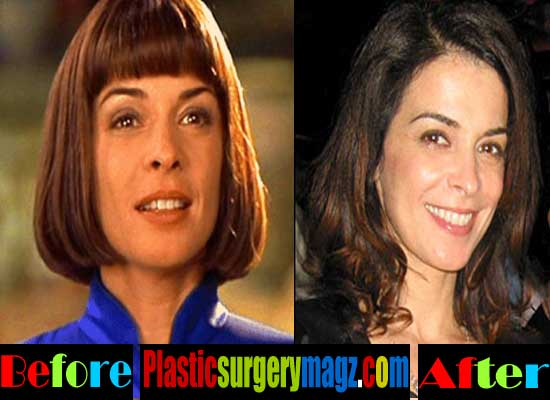 Annabella Sciorra Cosmetic Surgery Before and After