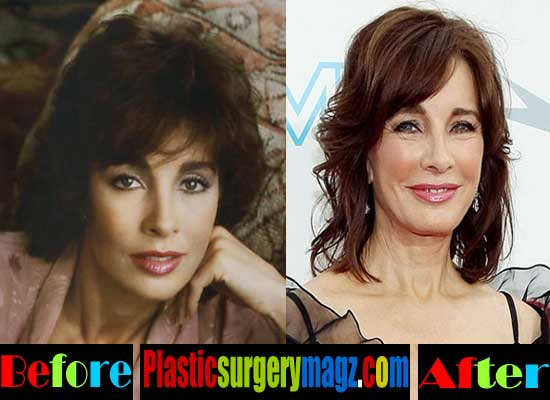 Anne Archer Plastic Surgery Before and After