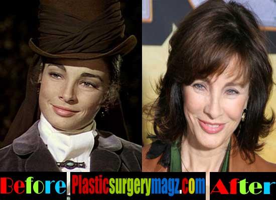 Anne Archer Plastic Surgery Photos