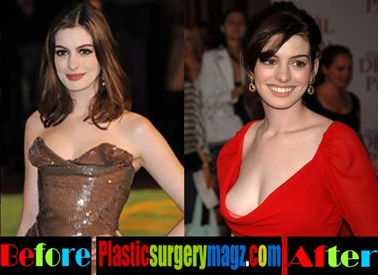 Anne Hathaway Plastic Surgery Breast Implants