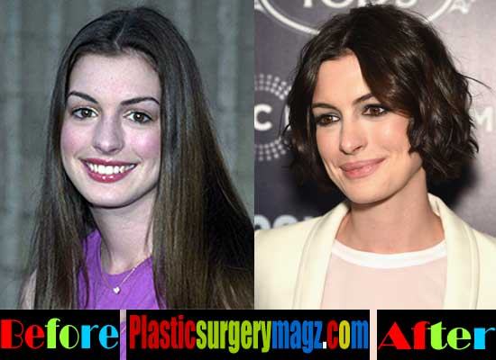 Anne Hathaway Plastic Surgery Nose Job