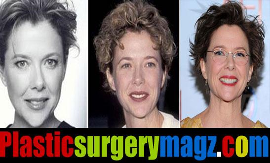 Annette Bening Plastic Surgery Facelift