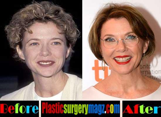 Annette Bening Plastic Surgery Botox