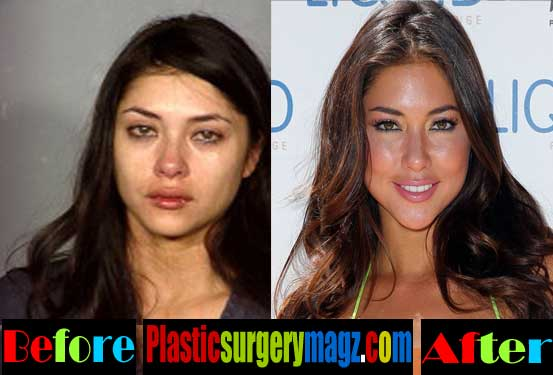 Arianny Celeste Plastic Surgery