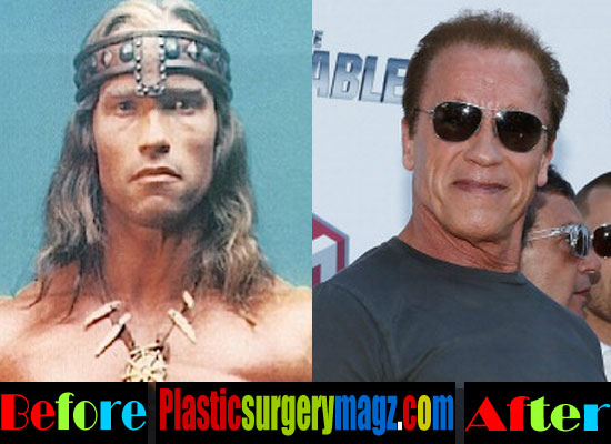 Has Arnold Schwarzenegger Had Plastic Surgery