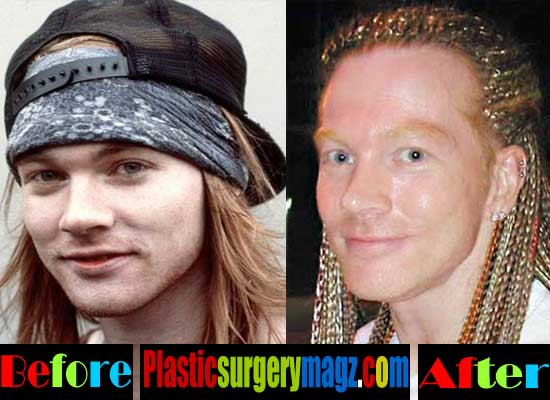 Axl Rose Nose Job Before and After