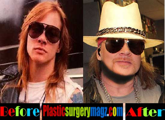 Axl Rose Plastic Surgery Images