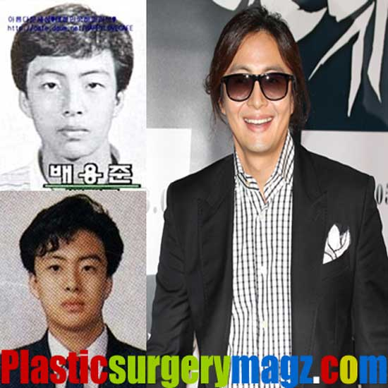 Bae Yong Joon Plastic Surgery Before and After
