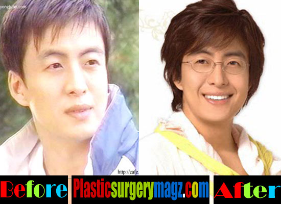 Bae Yong Joon Cosmetic Surgery
