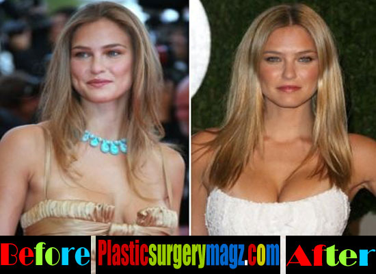 Bar Refaeli Breast Size