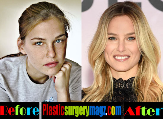 Bar Refaeli Plastic Surgery Nose Job