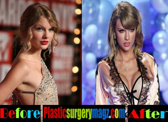 Taylor Swift Breast Implants