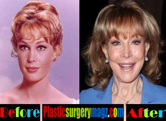 Barbara Eden Had Plastic Surgery