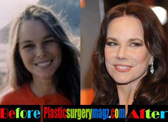 Barbara Hershey Before and After Photos