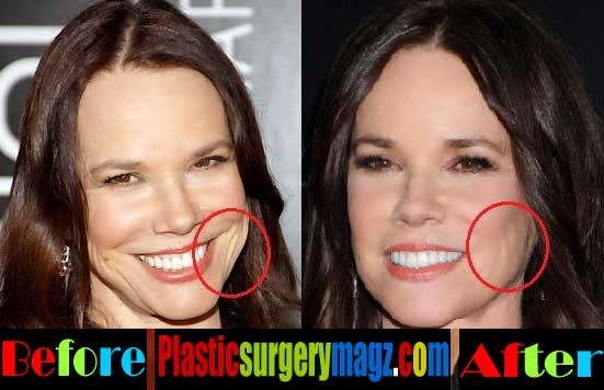 Barbara Hershey Plastic Surgery Pictures