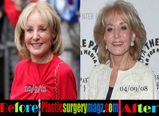 Barbara Walters Plastic Surgery Facelift