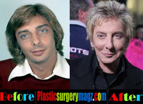 Barry Manilow Plastic Surgery Gone Wrong