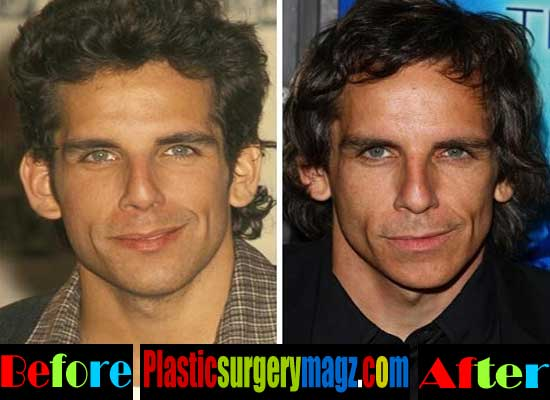 Ben Stiller Plastic Surgery Before and After