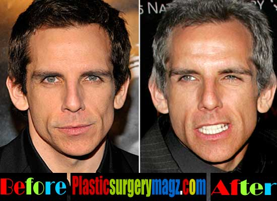 Ben Stiller Plastic Surgery Pictures