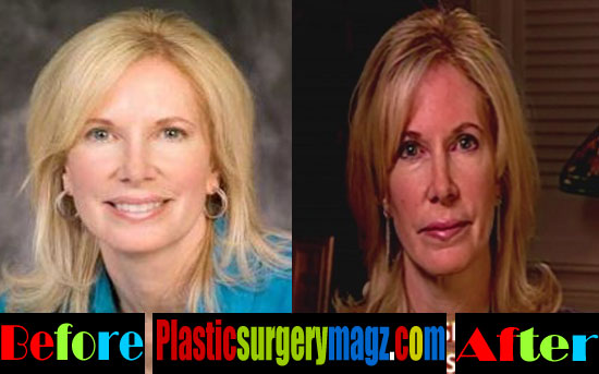 Beth Holloway Plastic Surgery Before And After