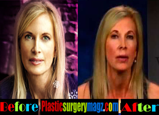 Beth Holloway Plastic Surgery Nose