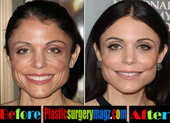 Bethenny Frankel Plastic Surgery Face