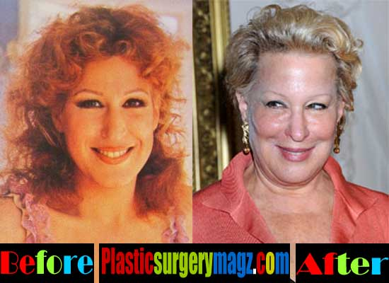 Bette Midler Plastic Surgery Pictures