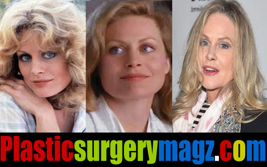 Beverly D Angelo Plastic Surgery Before and After Photos