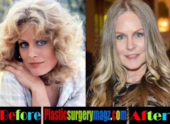 Beverly D Angelo Plastic Surgery Before and After