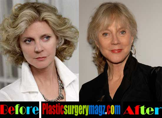 Blythe Danner Plastic Surgery Before and After Pictures