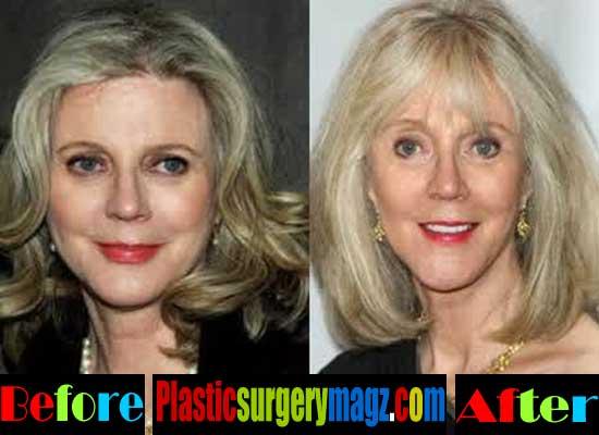 Blythe Danner Plastic Surgery Facelift
