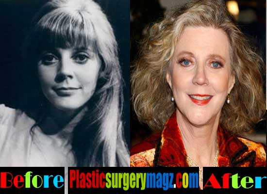 Blythe Danner Plastic Surgery Photos