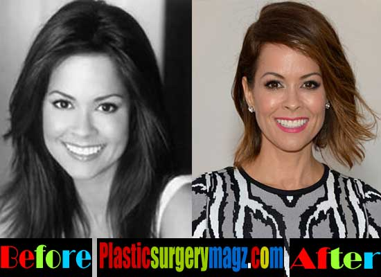 Brooke Burke Plastic Surgery Botox Injections