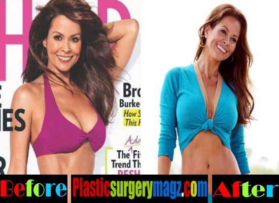 Brooke Burke Plastic Surgery Breast Augmentation