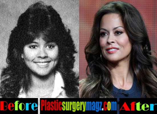 Brooke Burke Plastic Surgery Nose Job