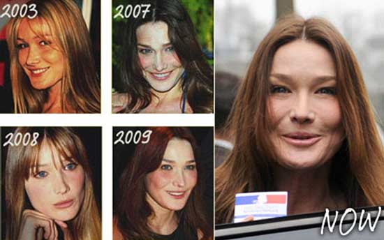 Carla Bruni Plastic Surgery Before and After