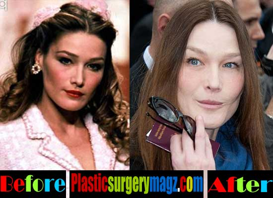 Carla Bruni Plastic Surgery Images