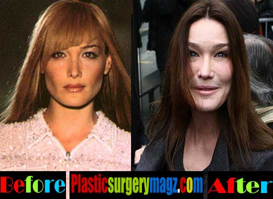 Carla Bruni Plastic Surgery Photos