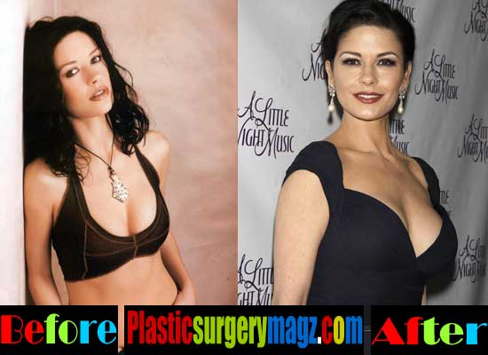 Catherine Zeta Jones Plastic Surgery Breast
