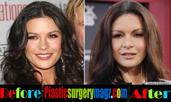 Catherine Zeta Jones Plastic Surgery Face