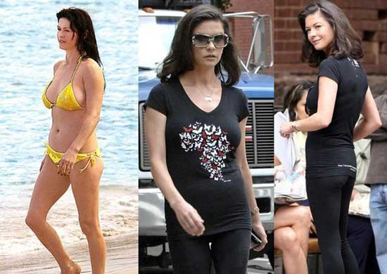 Catherine Zeta Jones Plastic Surgery Liposuction
