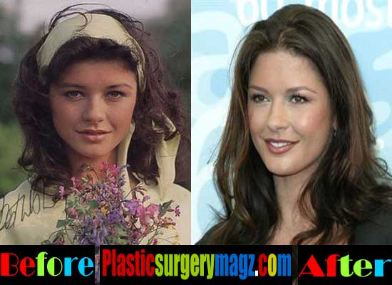 Catherine Zeta Jones Plastic Surgery Nose